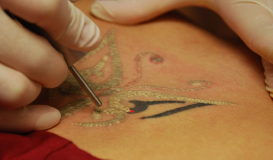The Facts About Tattoo Removal