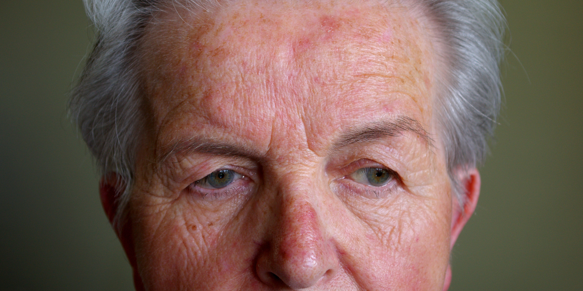How To Treat Rosacea (Part 1)