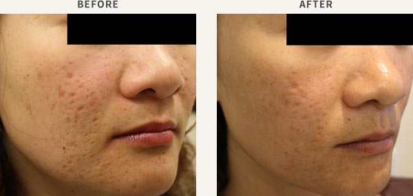 Acne Scar Treatment And Removal Sydney Chatswood
