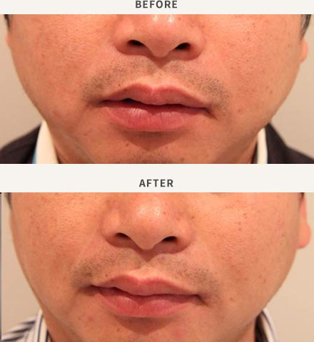 ANTI-WRINKLE INJECTION - MASSETER MUSCLE ENLARGEMENT