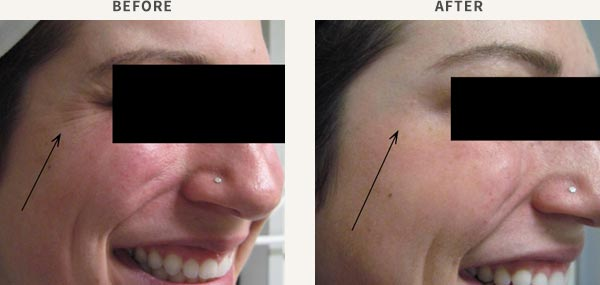 ANTI-WRINKLE INJECTION - CROWS FEET