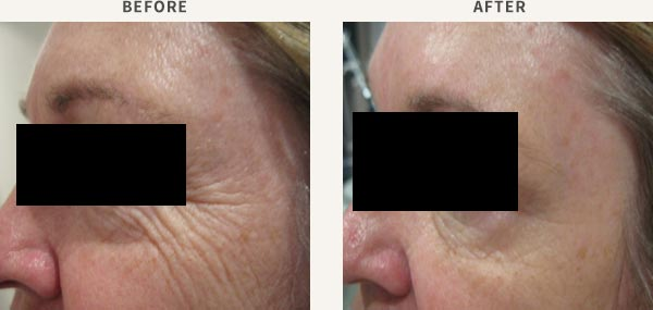 ANTI WRINKLE INJECTION - FOREHEAD & FROWN LINE
