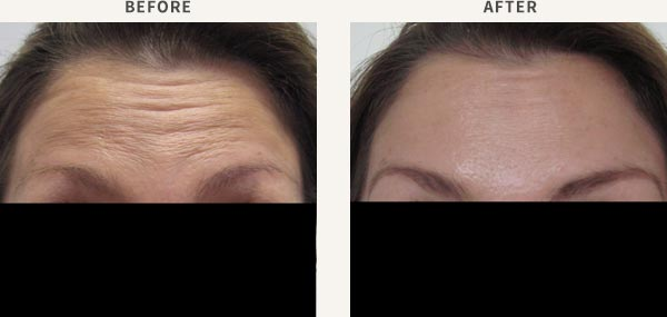 ANTI-WRINKLE INJECTION - FOREHEAD LINES