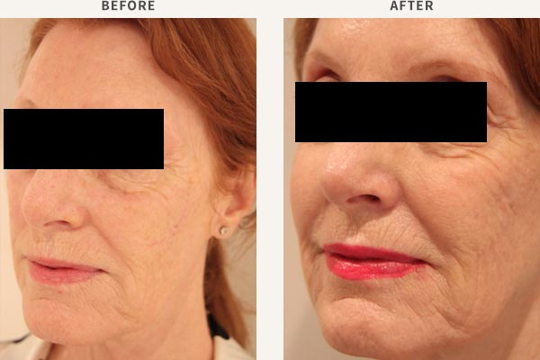 ANTI-WRINKLE INJECTION - FROWN LINES, FOREHEAD, BROW LIFT, CROWS FEET<br/>FILLER - MID CHEEK ENHANCEMENT