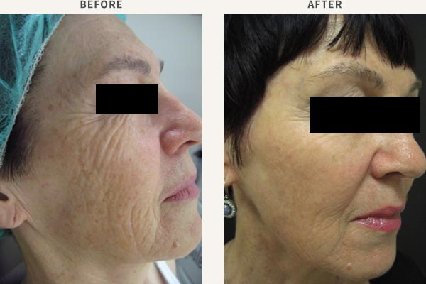 ANTI-WRINKLE INJECTION - FROWN LINES, FOREHEAD, BROW LIFT, CROWS FEET<br/>FILLER - MID CHEEK, TEMPLE & BROW ENHANCEMENT<br/>BROADBAND LIGHT PHOTO-REJUVENATION - FULL FACE REJUVENATION