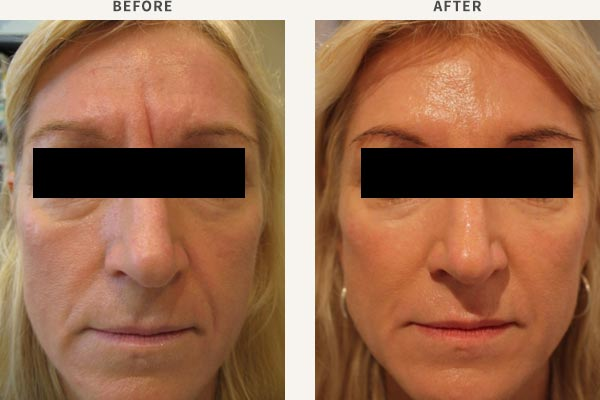 FILLER - MID CHEEK, TEMPLE & BROW ENHANCEMENT<br/>ANTI-WRINKLE INJECTION - FROWN LINES, FOREHEAD, BROW LIFT, CROWS FEET
