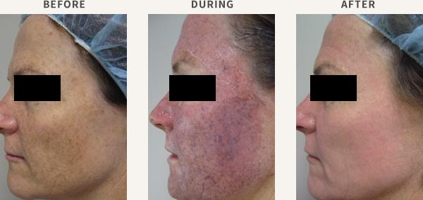 COMBINED IPL & PDT TREATMENT - ACTINIC DAMAGE