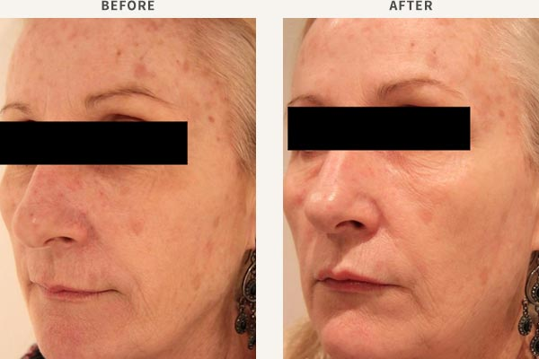 BROADBAND LIGHT PHOTO-REJUVENATION, ANTI-WRINKLE INJECTION AND FILLERS