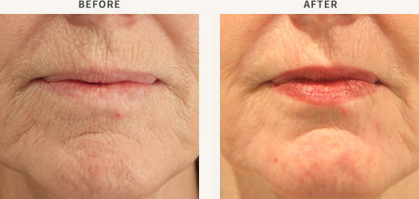 ERBIUM LASER RESURFACING - PERIORAL