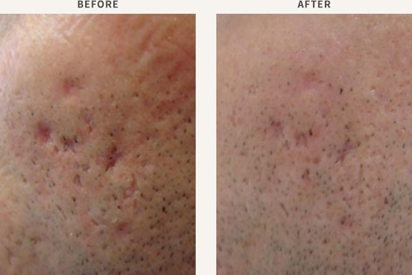 SUBCISION & FRACTIONAL LASER RESURFACING - ACNE SCAR