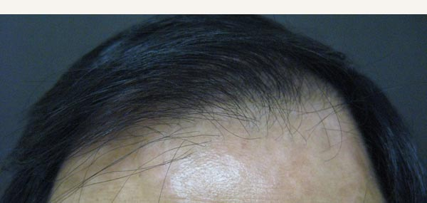 HAIR LOSS - MALE PATTERN ALOPECIA