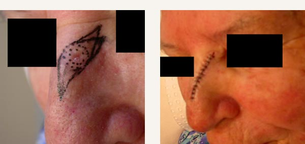 EXCISION OF NASAL BASAL CELL CARCINOMA - PRIMARY CLOSURE