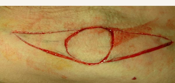 SKIN GRAFT - DONOR SITE