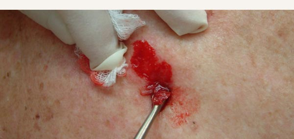 BOWEN'S DISEASE - TREATMENT WITH CURETTE AND CAUTERY