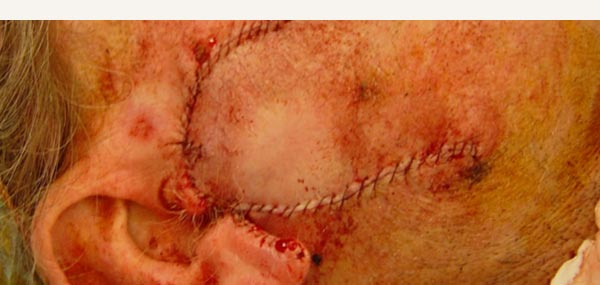 BOWEN'S DISEASE AND SQUAMOUS CELL CARCINOMA - BILOBE FLAP REPAIR