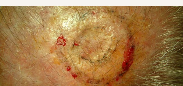 EXCISION OF SQUAMOUS CELL CARCINOMA - FULL THICKNESS SKIN GRAFT REPAIR