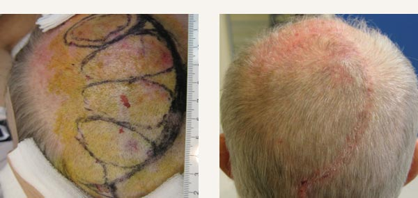 EXCISION OF SCALP BASAL CELL CARCINOMA - ROTATION FLAP REPAIR