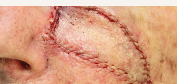 EXCISION OF SQUAMOUS CELL CARCINOMA - ISLAND PEDICLE FLAP REPAIR