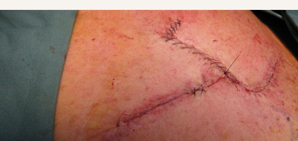 EXCISION OF BASAL CELL CARCINOMA - BILATERAL ADVANCEMENT FLAP REPAIR
